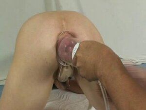 Bizarre anal rosebud pumping and distortion